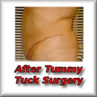 Prices for tummy tuck surgery in France