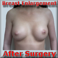 after Breast Enhancement 37