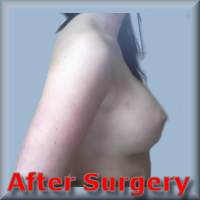 After Breast enhancement 3