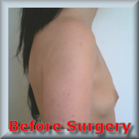 before Breast Enhancement 39
