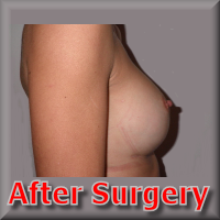 after breast enhancement in france 51