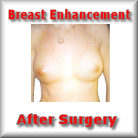 Breast Enhance after