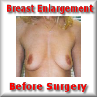 pictures/breast_enlarge.htm