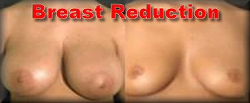 Breast reduction reduction