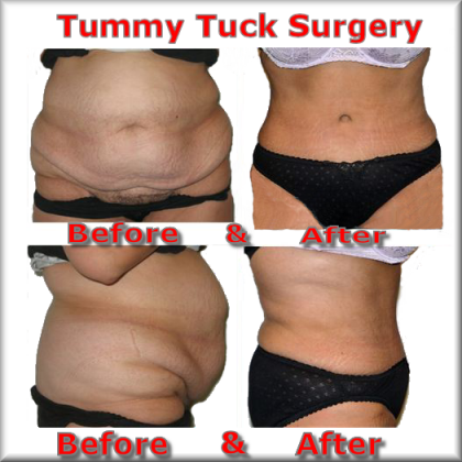 Eample 3 of abdominoplasty in france
